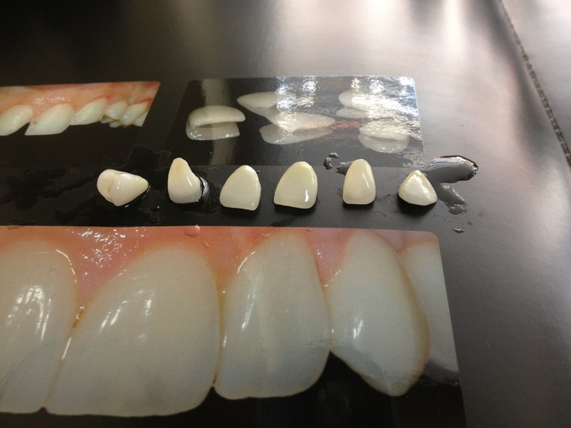 Fixed dentures - Facets