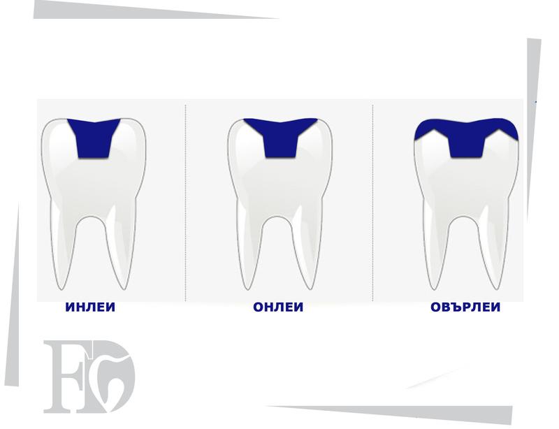 Дефектите на зъбите и конструкциите инлеи, онлеи, овърлеи